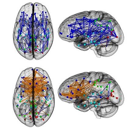 Connettività dei cervelli nei diversi sessi